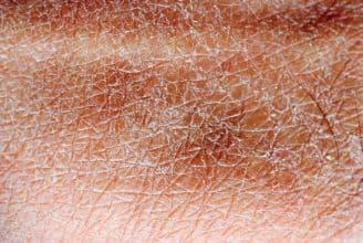 Kürbiskernöl gegen trockene Haut